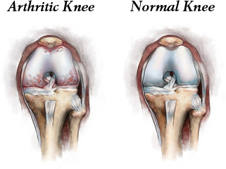Early knee arthritis symptoms first felt when using stairs